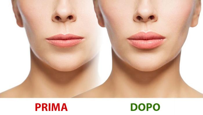 Vip's Lips rimpolpante labbra