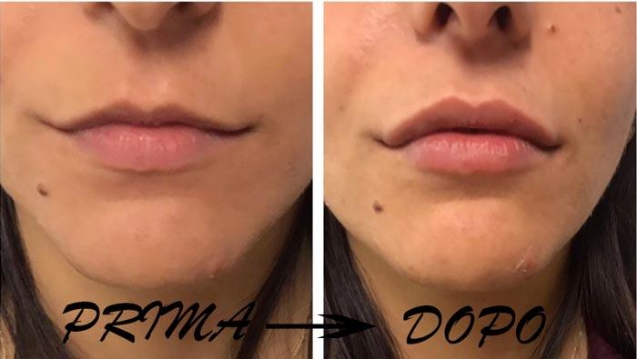 Come funziona Natulips gonfia labbra